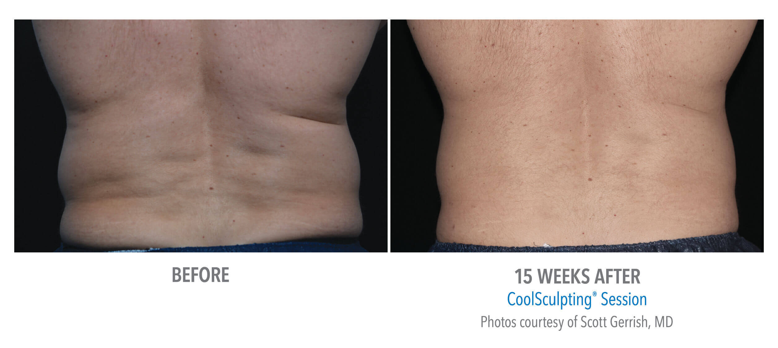 Remove Stubborn Back Fat with CoolSculpting