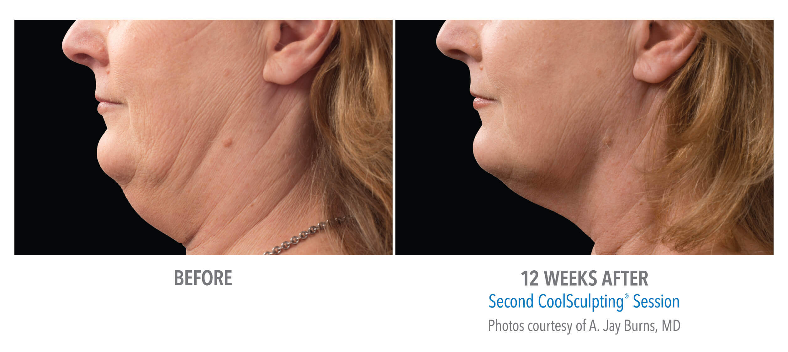 CoolSculpting to Reduce Chin Fat