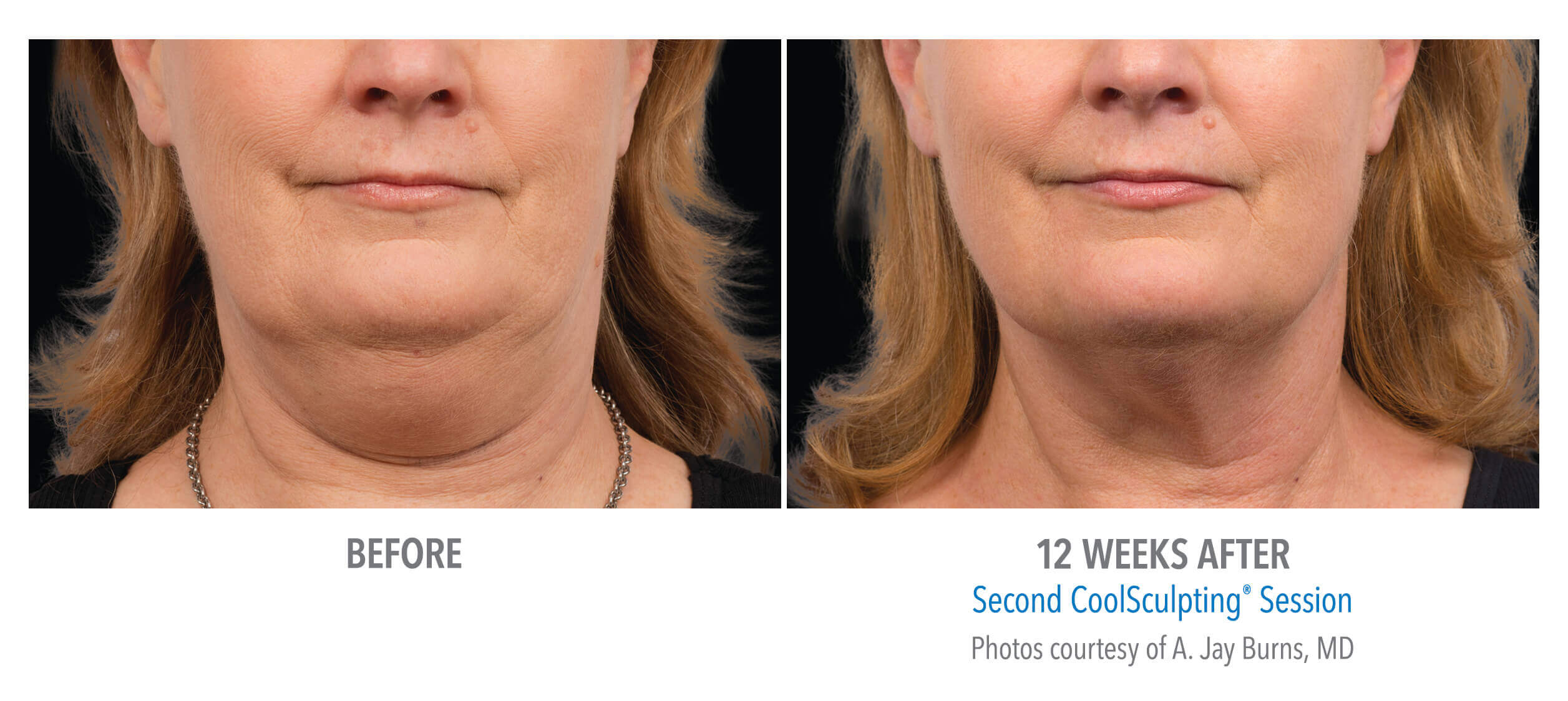Reducing Chin Fat with CoolSculpting