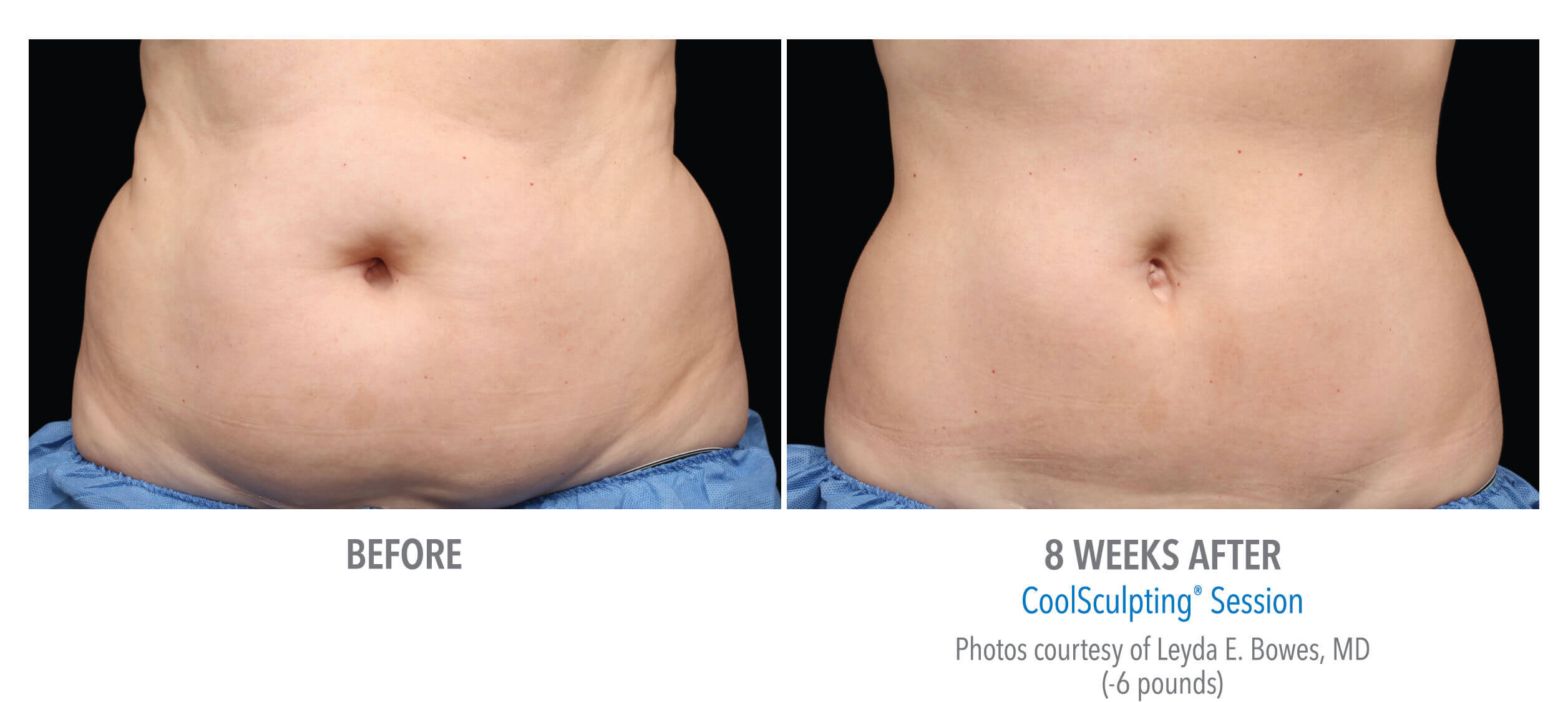 CoolSculpting Belly Fat Before and After Photo