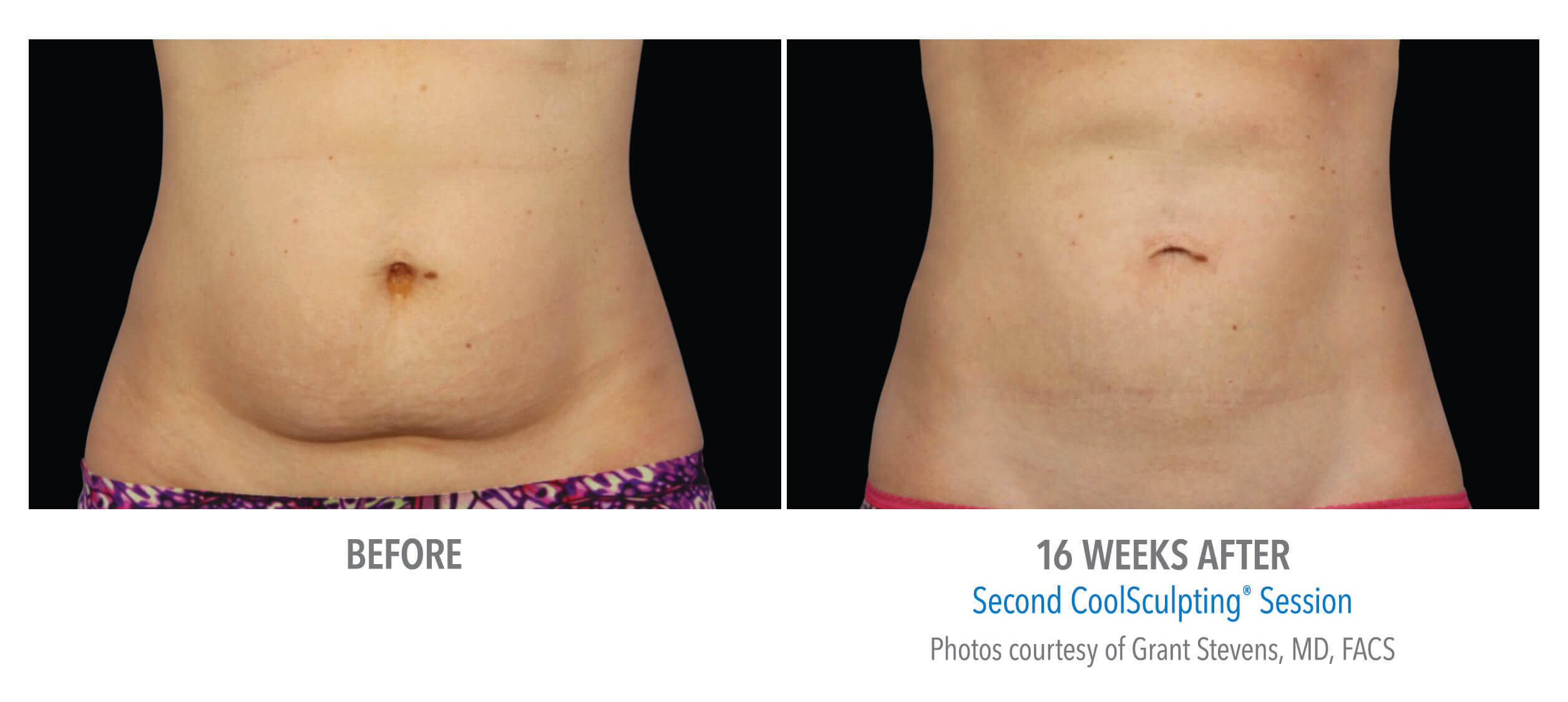 CoolSculpting Belly Fat Removal