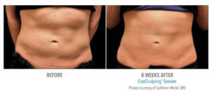 CoolSculpting Stomach Fat