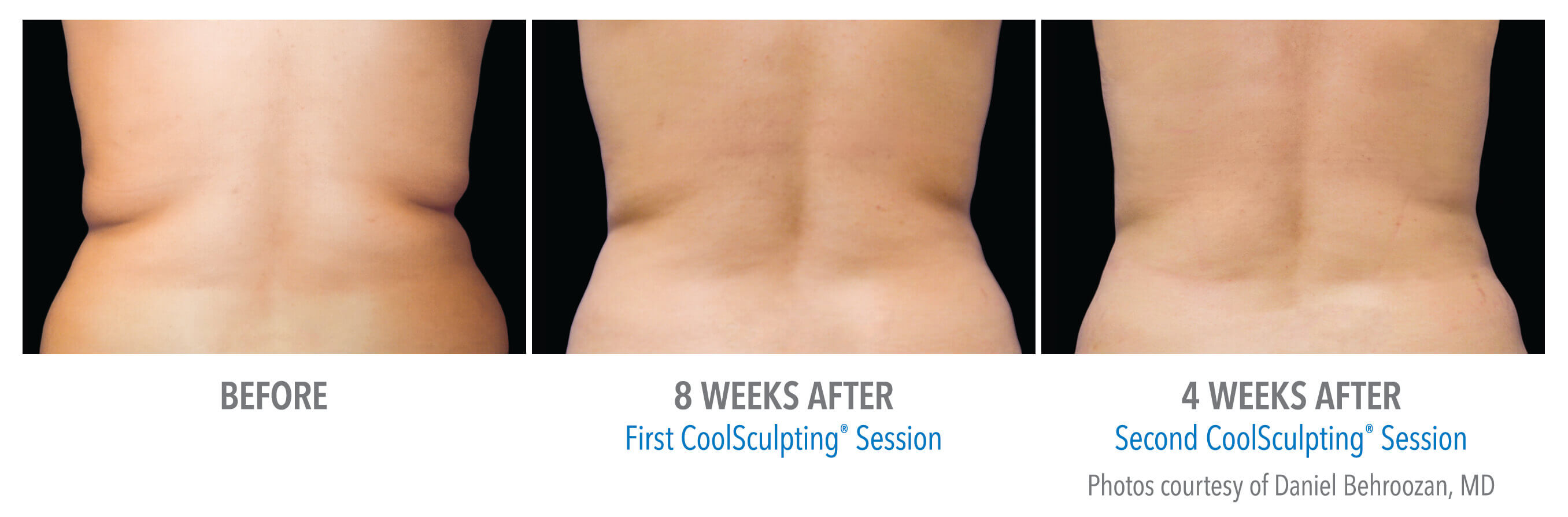 CoolSculpting Love Handles - Female