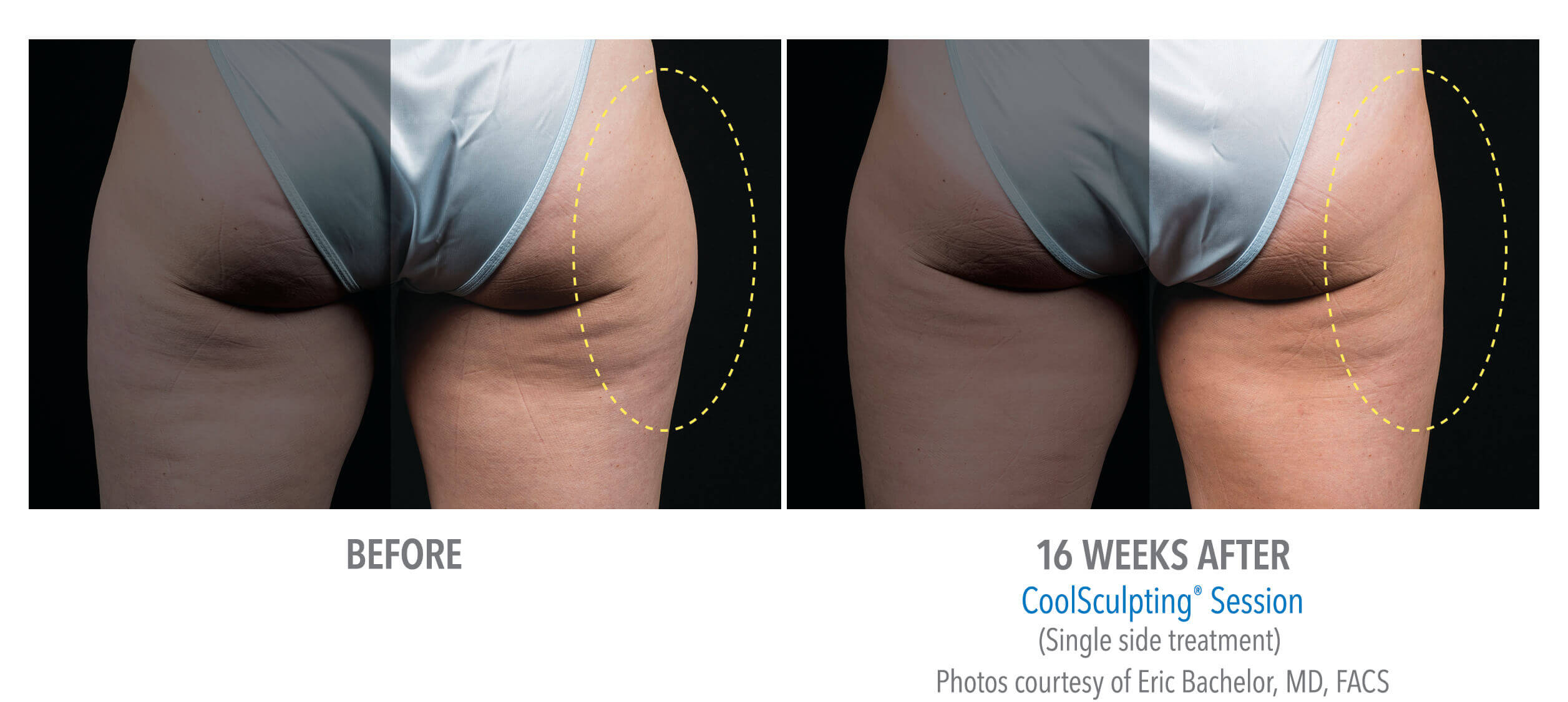 CoolSculpting Outer-Thigh Fat