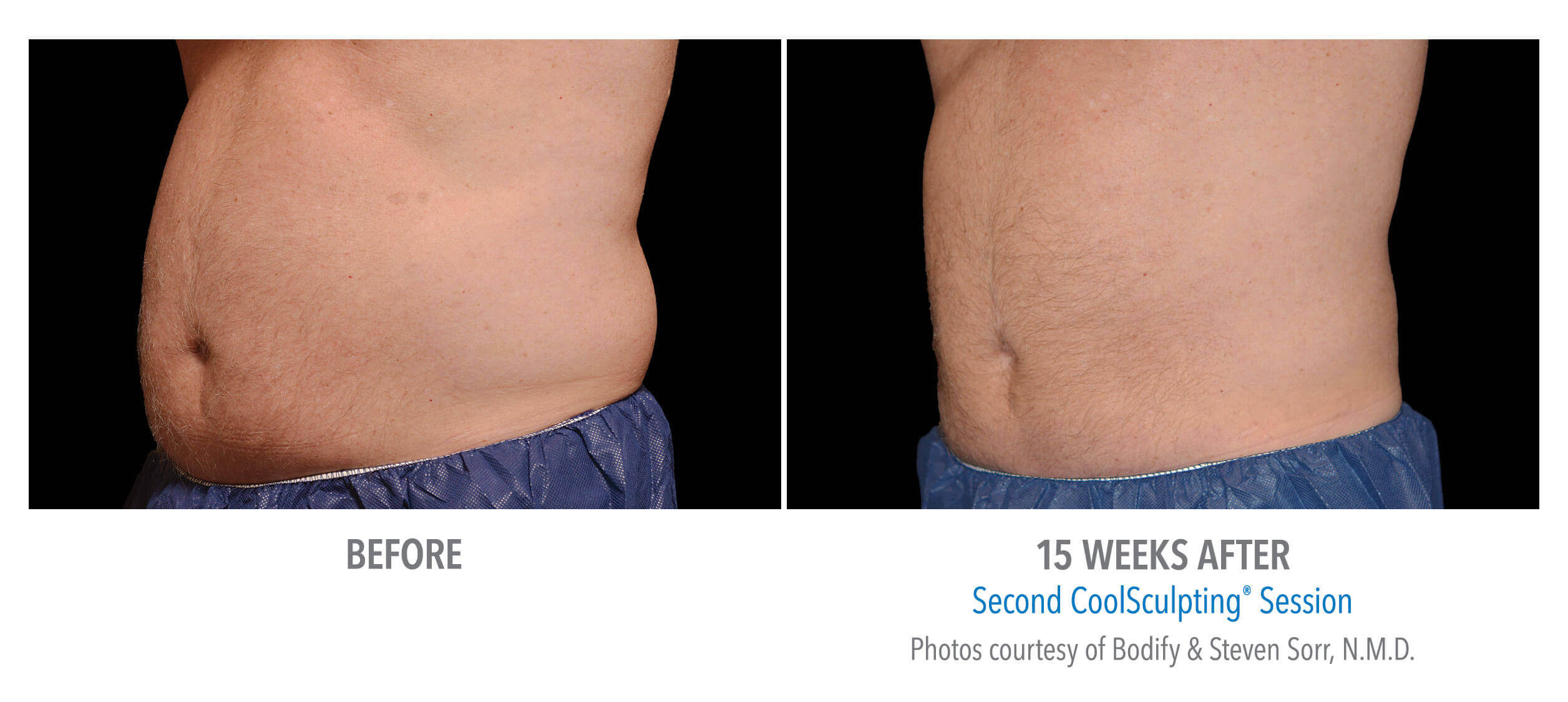 CoolSculpting Love Handles