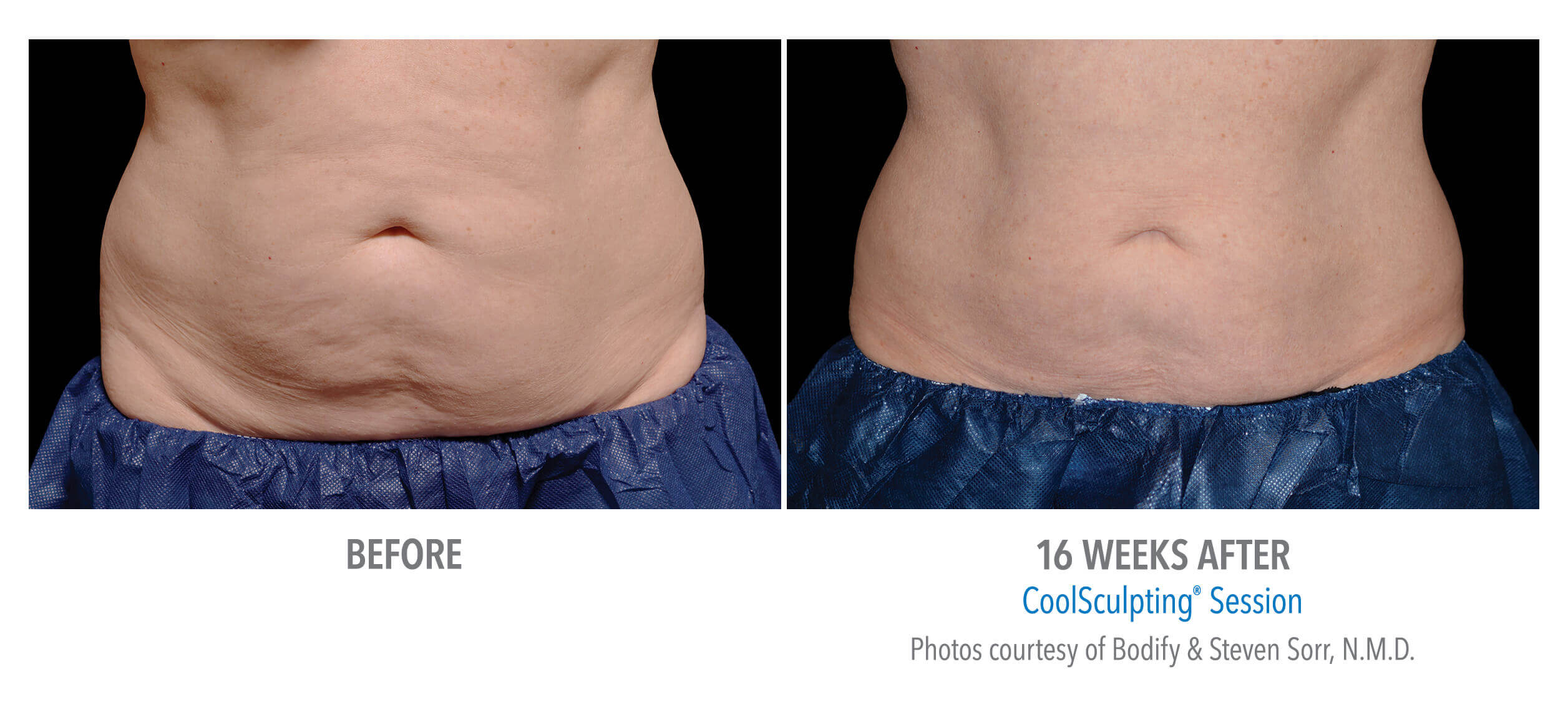 CoolSculpting Stomach Before and After Photo
