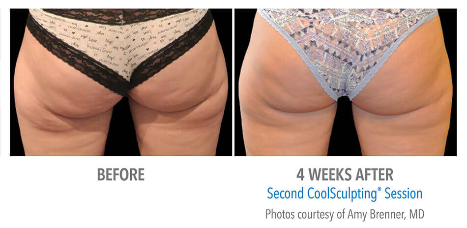 CoolSculpting Before and After - Banana Roll