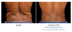 CoolSculpting Love Handles Before and After Photo