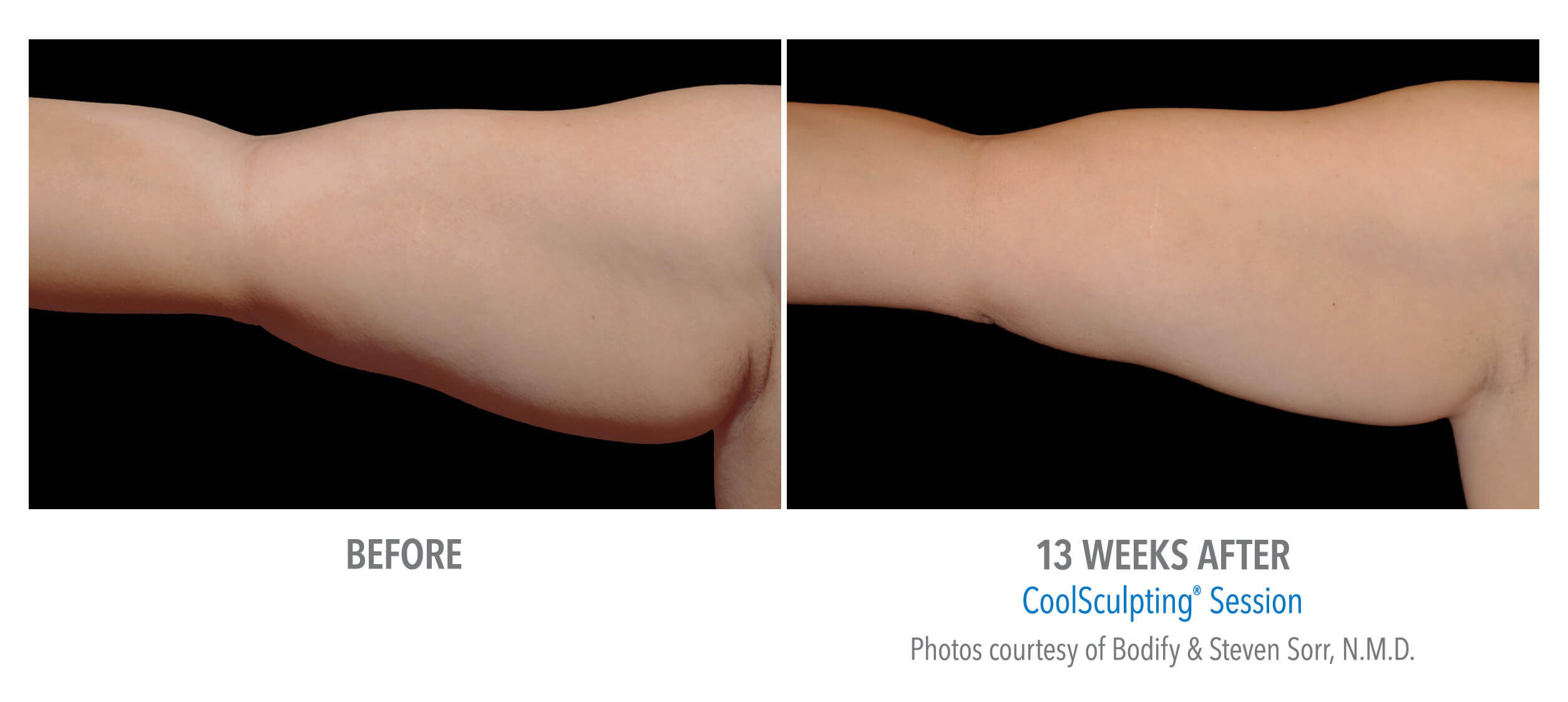 CoolSculpting Before and After Under Arms