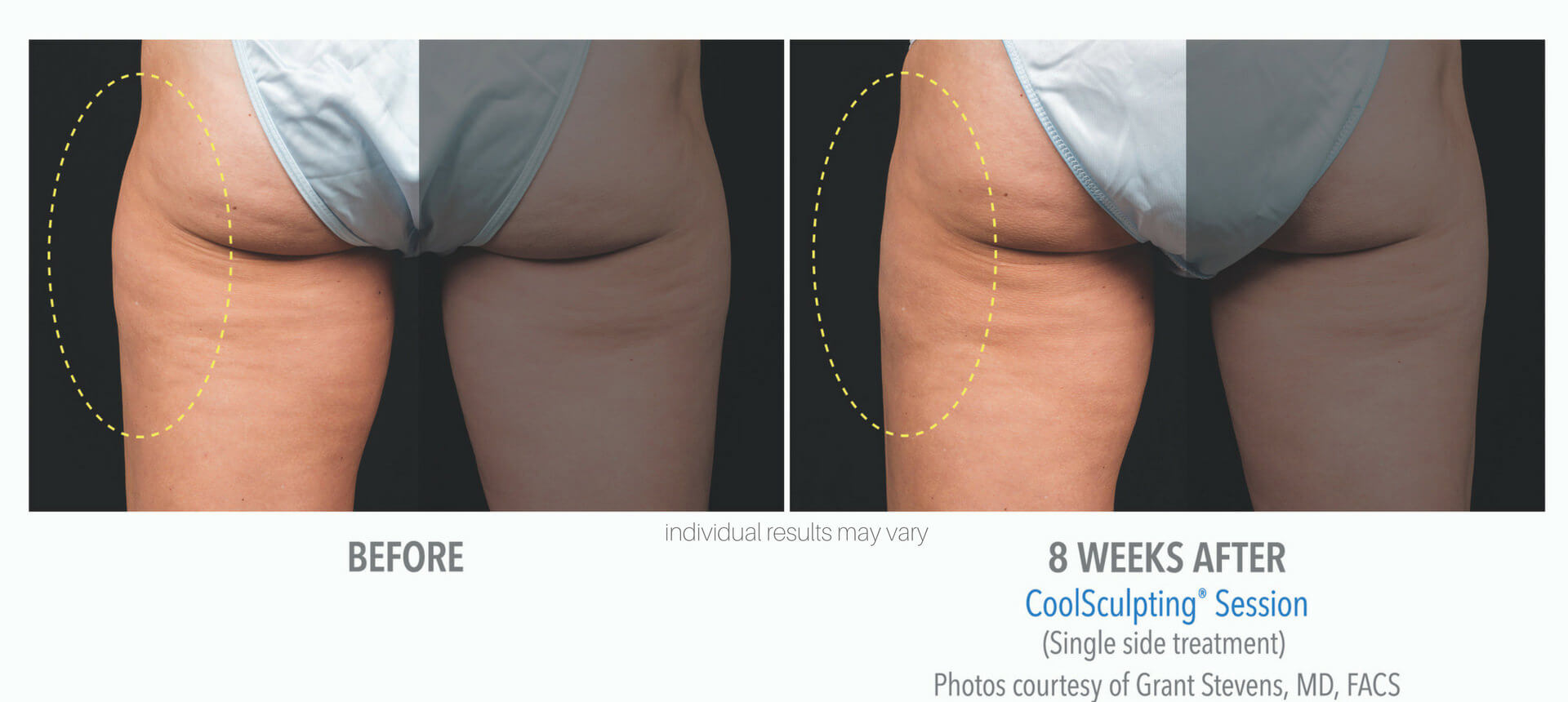 CoolSculpting Outer Thighs 8 Weeks Later
