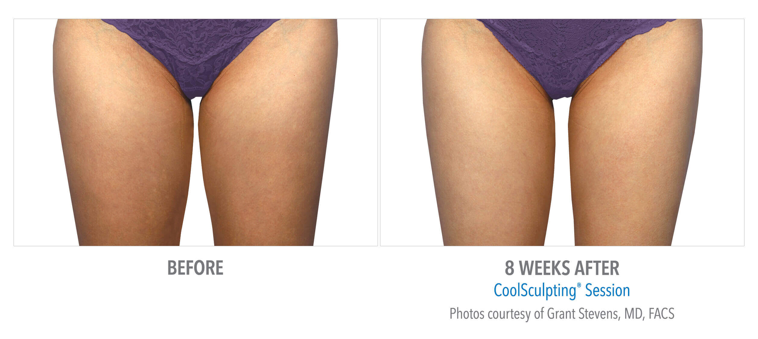 Coolsculpt-Inner-Thighs-8 Weeks Later