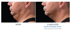 CoolSculpting Before & After - Double Chin